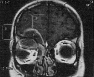 рентгеновский снимок воспалённой лобной пазухи