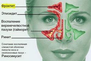 схема заболеваний пазух