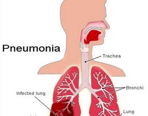 схематическое изображение протекания пневмонии
