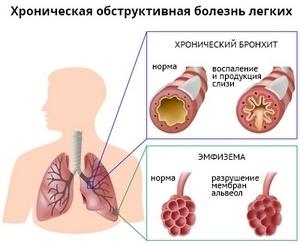 симбиоз хронического бронхита и эмфиземы