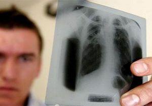 врач по снимку диагностирует заболевание лёгкого