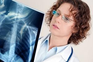 врач рассматривает рентгеновский снимок лёгкого