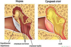 здоровое ухо и больное отитом