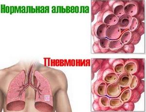 изменения в альвеолах при пневмонии