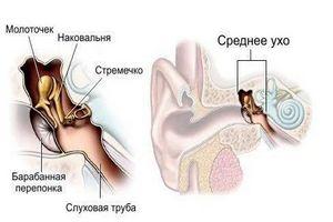 происхождение отита в разрезе уха