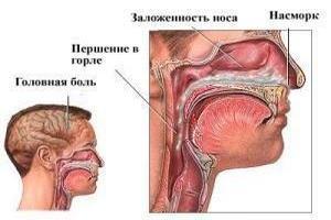 схема симптомов гайморита