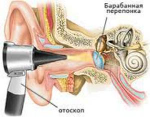 отоскопия при лечении отита