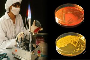 проведение анализа на чувствительность к антибиотику