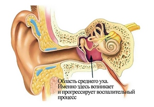 схема уха и развития отита