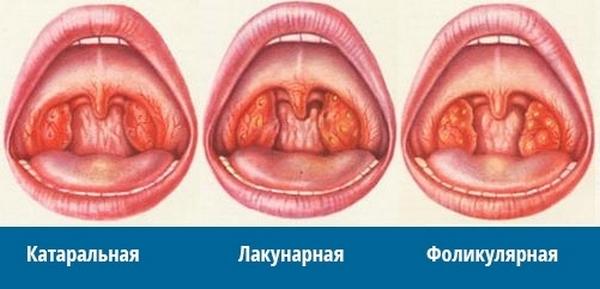сравнение различных форм ангины