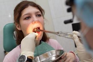 лечение ангины хирургическим методом