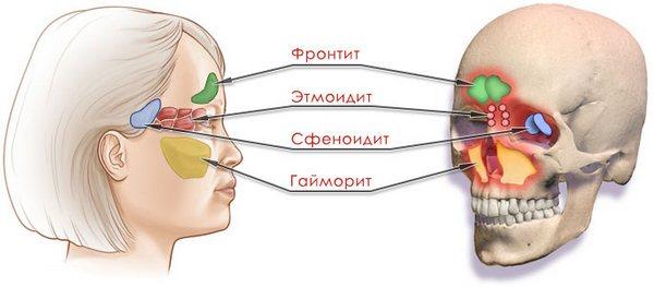 схематическуое изображения расположения различных видов синуситов