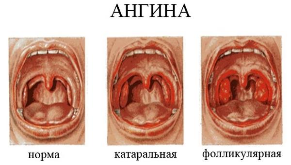 отличие различных форма ангины