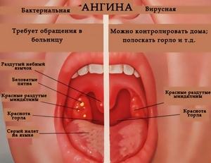 анализ видов ангины