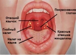 основные симптомы воспалительного процесса в горле