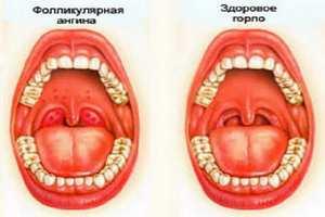 сравнение больного и здорового горла