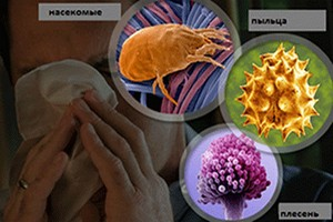 факторы првоцирующие аллергические реакции