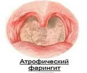 атрофические процессы в горле