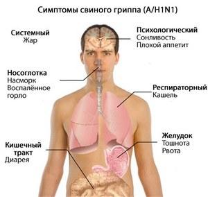 симптомы заболевания гриппом