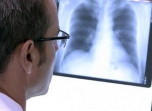 рентгенограмма как метод диагностики эмфиземы