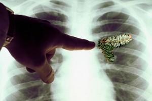 врач указывает на изменения в лёгком