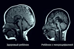 вид мозга поражённого микроцефалией