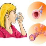 Лечение ХОБЛ народными средствами: настои, питание, ингаляции
