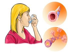 обструктивная болезнь лёгкого