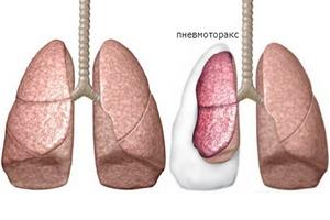 течение пневмоторакса
