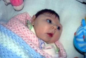 последствия заражения вирусом зика - врождённые отклонения детей