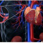 Лечение тромбоэмболии легочной артерии (ТЭЛА)