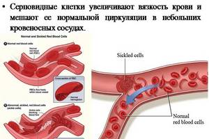 влияние вязкости крови на развитие тэла