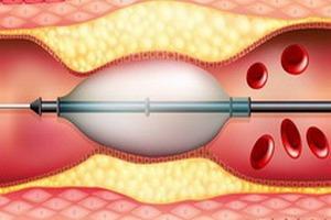 введение катетера в бедренную артерию