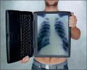 виз лёгкого поражённого эмфиземой