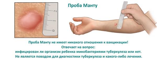 отличие манту от прививки