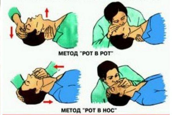 методика проведения искусственного дыхания