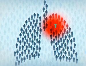 распространения туберкулёза при контакте