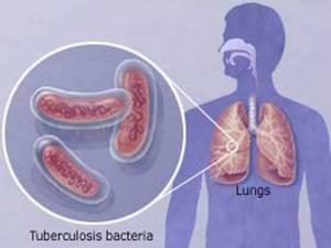 блок схема заражённого лёгкого