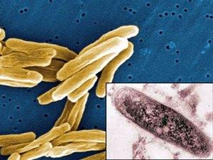 палочка коха - микробактерия туберкулёза