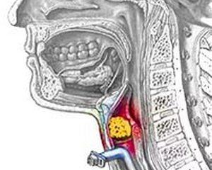 схема удушения инородным телом