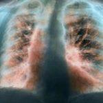 Продолжительность жизни при фиброзе легких