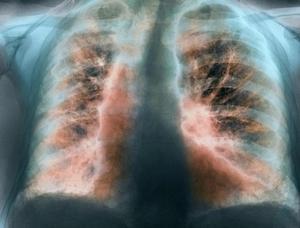 вид лёгкого поражённого фиброзом