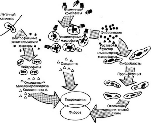 схема патогенеза фиброза лёгкого
