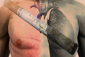 курение как фактор риска для заболевания раком лёгкого