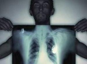 больной туберкулёзом держит рентгенограмму