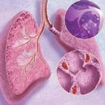 лёгкое поражённое саркоидозом
