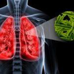 Палочка Коха (mycobacterium tuberculosis) – как передается возбудитель туберкулеза