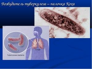 палочка коха как возбудитель туберкулёза