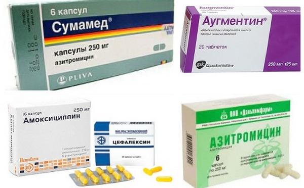 антибиотики для лечения бактериальных заболеваний