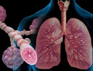 обструкция лёгких в 3д